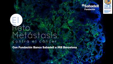 Reto Metástasis con Fundación Banco Sabadell y el Instituto de Investigación Biomédica de Barcelona (IRB)